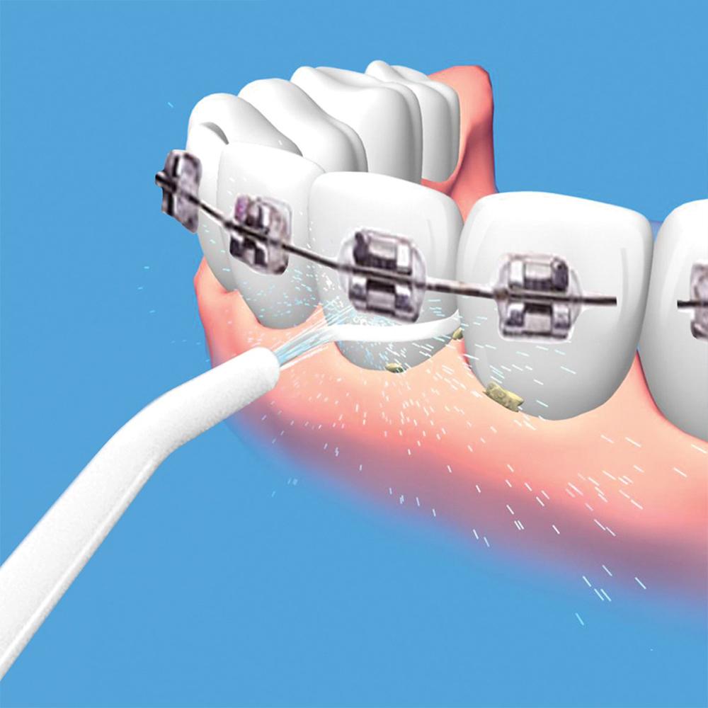 Искрящо бели зъби със зъбен душ от POWER FLOSS,  устен иригатор с високо налягане