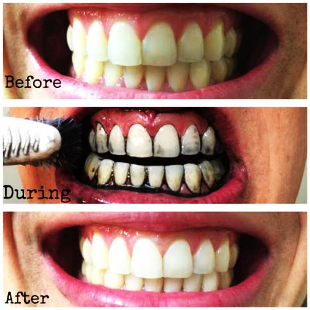 Избелваща паста за зъби с активен въглен CHARCOAL FLUORIDE, 125 ml.